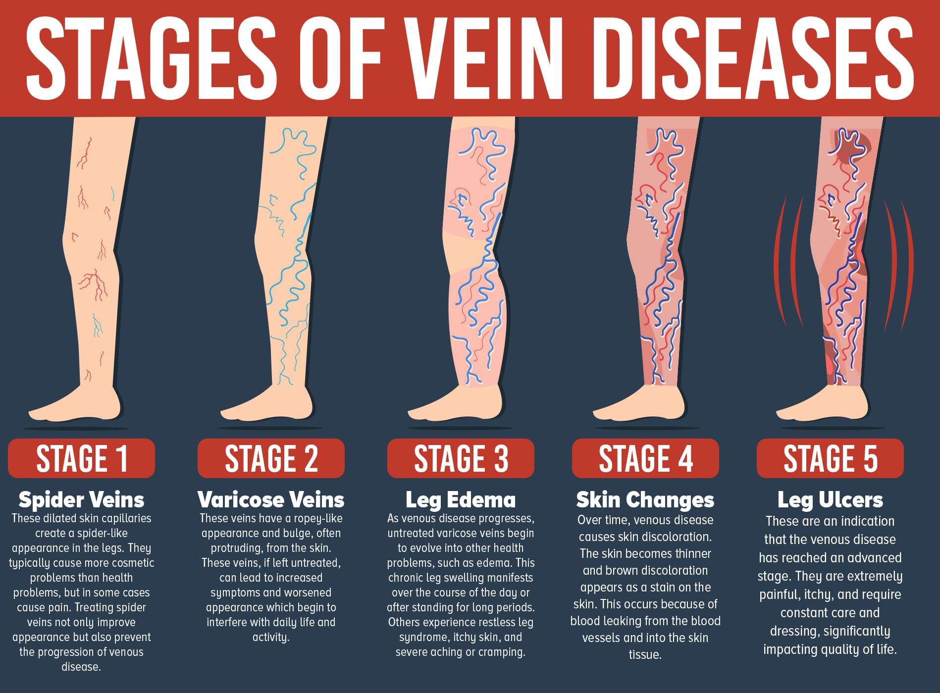 Don't Let Varicose Veins Get You Down. Treatment Is ...